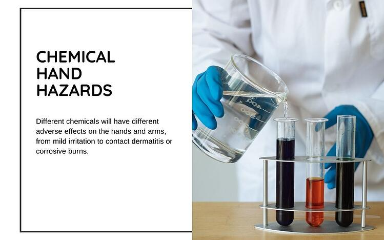 chemical hand hazards